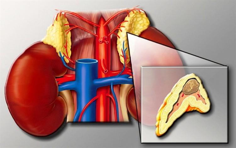 Гипертония 3 степени риск 3, 4: что это такое, симптомы и лечение